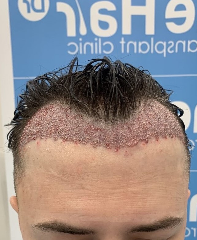 Hair transplant with The Hair Doctor Leeds.jpeg