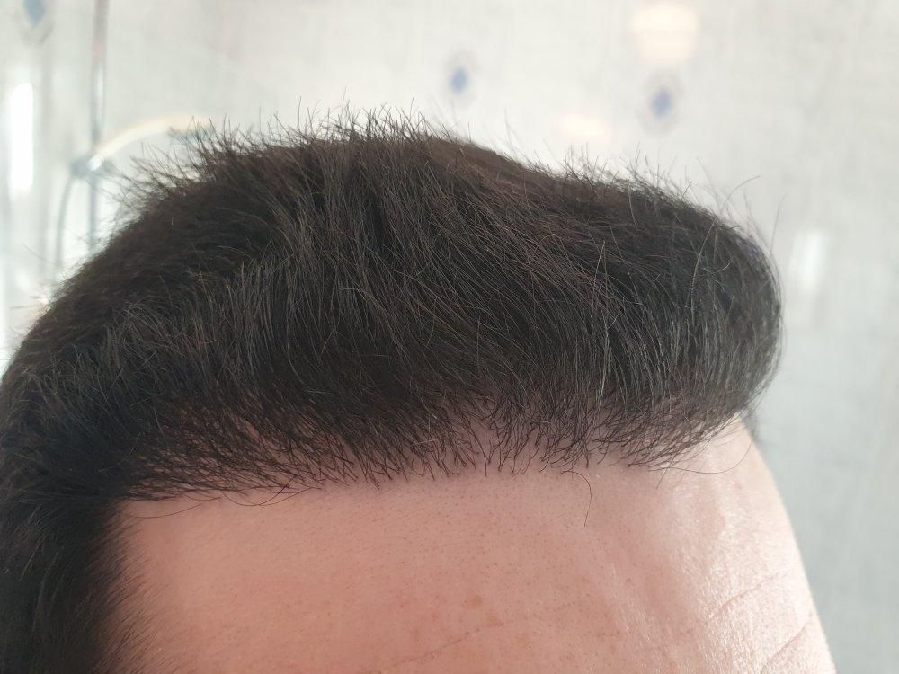 Hairline 3 (6 months post-transplant).jpg