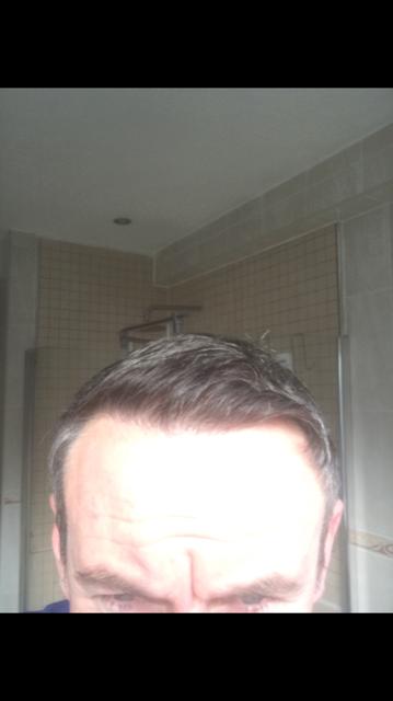 harsh light hairline.png