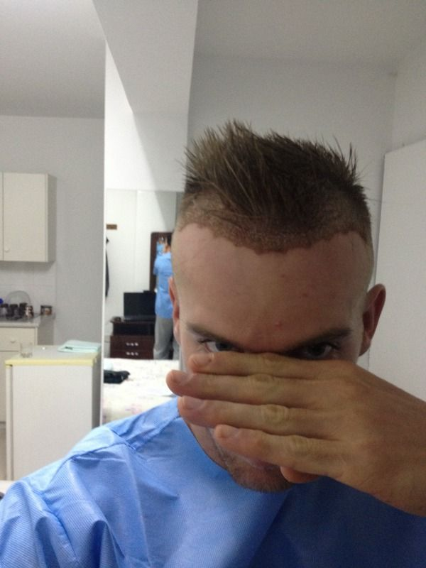 HDC Cyprus, fue hair transplant.jpg