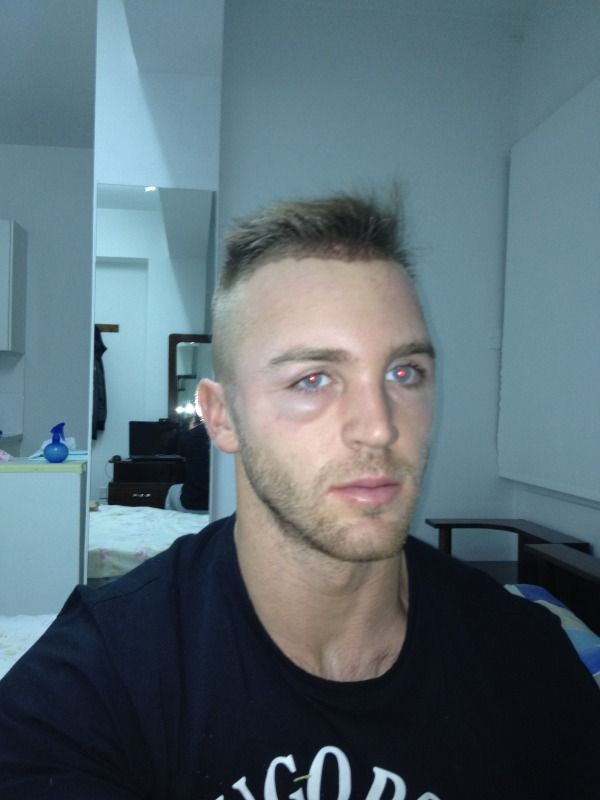 HDC Cyprus FUE with face swelling.jpg