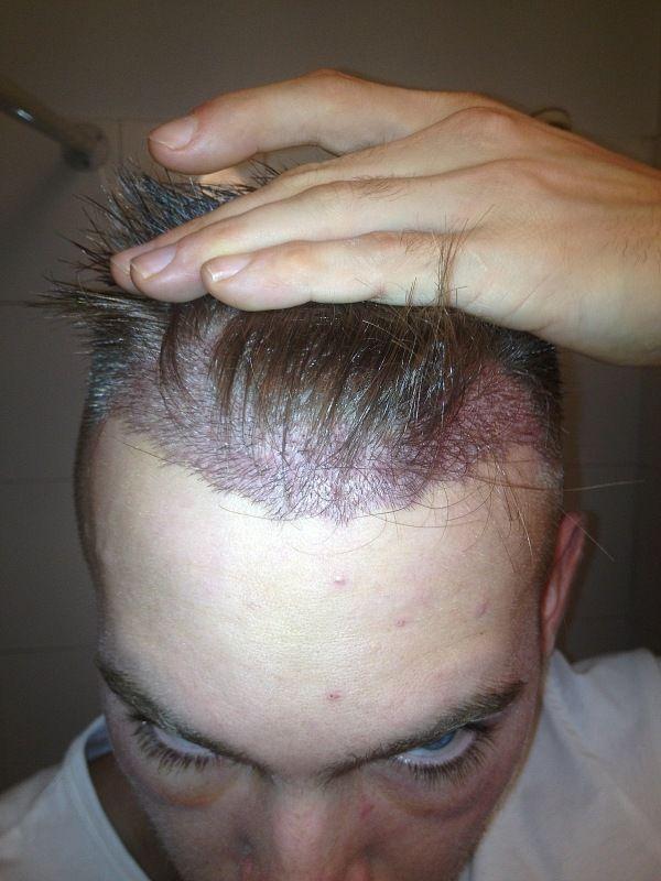 HDC Hair Transplant.jpg