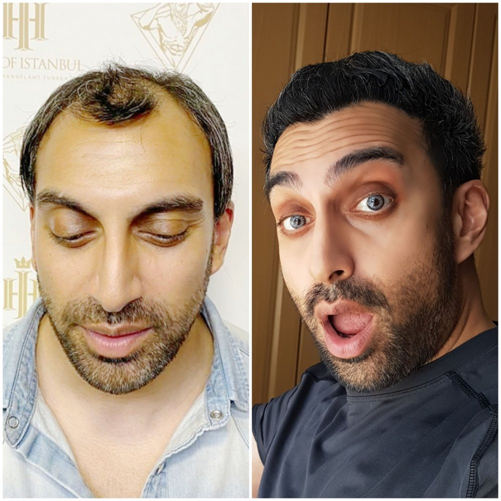 HOI Before After.jpg