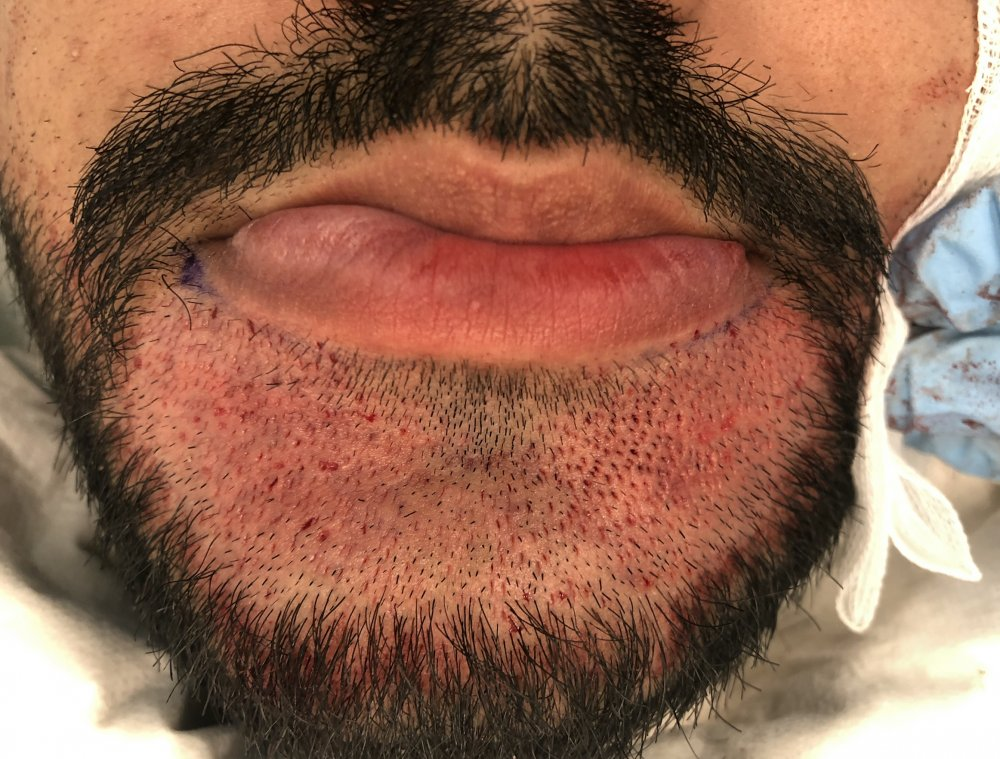 Beard hair transplant. Incisions site by Dr Arshad (Hair transplant surgeon).