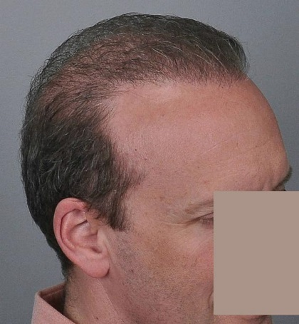 Jerry Cooley hair transplant repair Lateral Humps.jpg