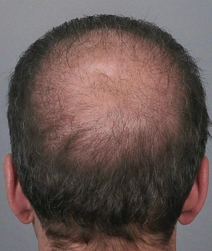 Jerry Cooley hair transplant repair1Lateral Humps.jpg