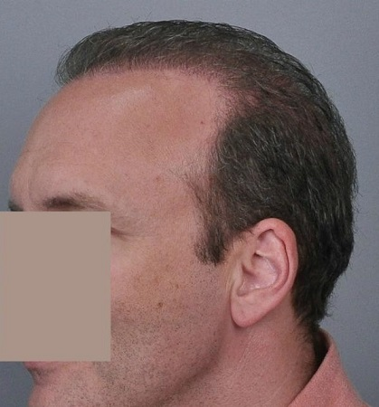 Jerry Cooley hair transplant repair2 Lateral Humps.jpg