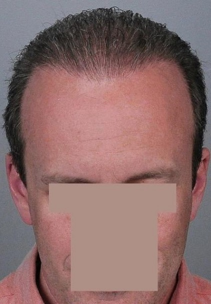 Jerry Cooley hair transplant repair3 Lateral Humps.jpg