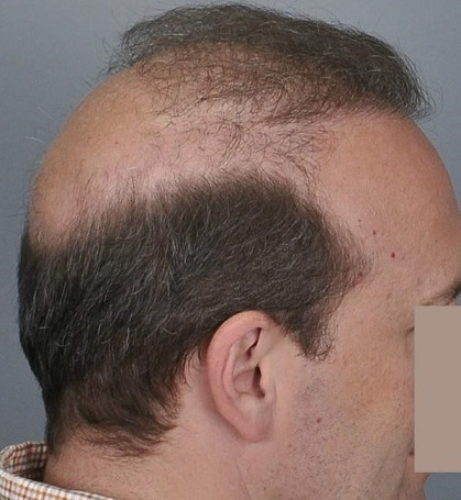 Jerry Cooley hair transplant repair5 Lateral Humps.jpg