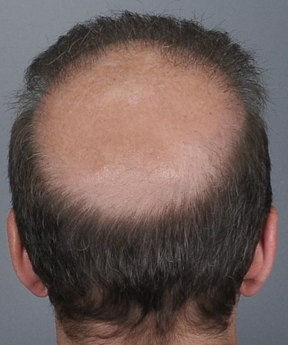 Jerry Cooley hair transplant repair6 Lateral Humps.jpg