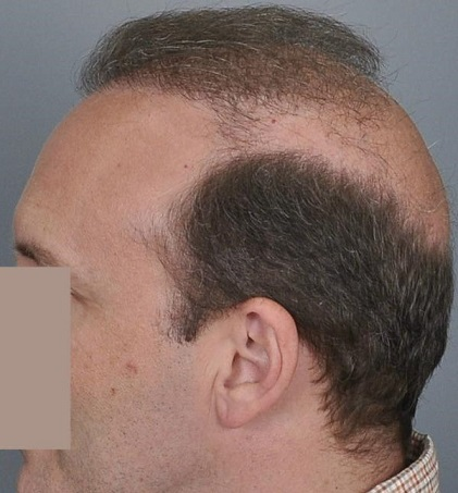 Jerry Cooley hair transplant repair7 Lateral Humps.jpg