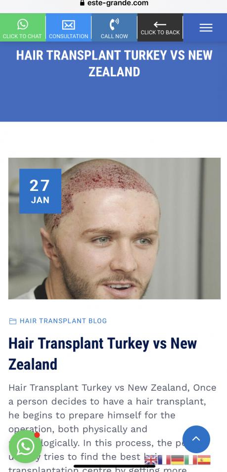 Kyle Christie Geordie Shore Hair Transplant.png