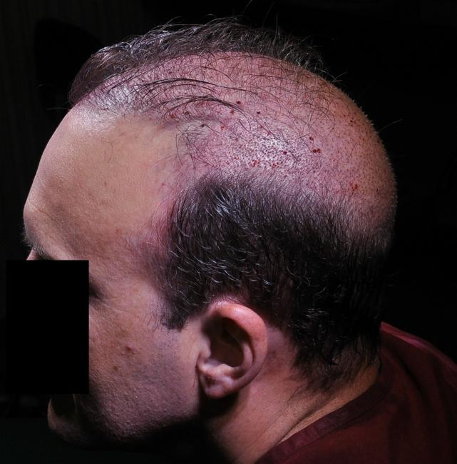 Lateral hump hair transplant..jpg