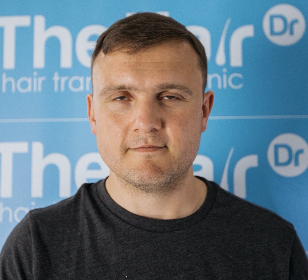Dr Arshad (The Hair Dr Clinic) After Colin front view