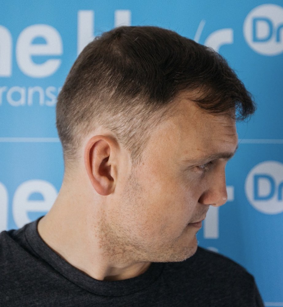 Dr Arshad (The Hair Dr Clinic) After Colin left lateral view