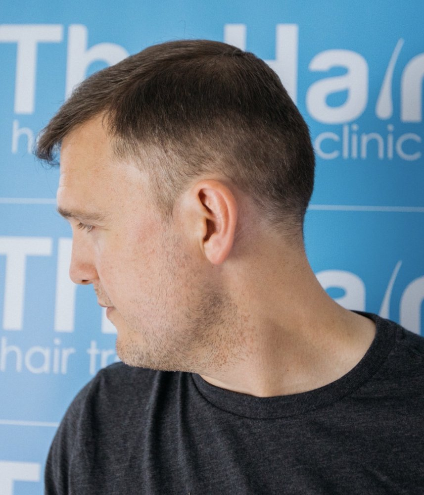 Dr Arshad (The Hair Dr Clinic) After Colin right lateral view