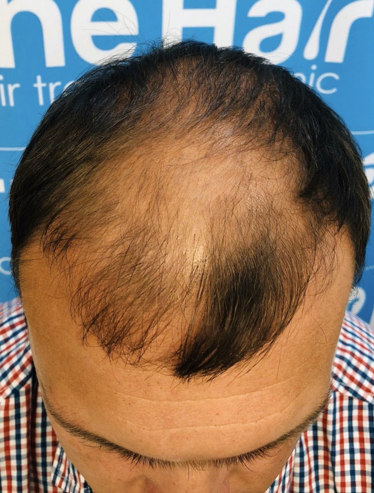 Dr Arshad (The Hair Dr Clinic) Before Colin. Top view.