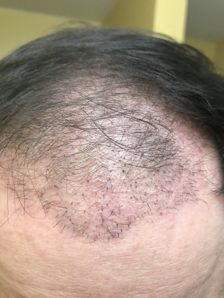 Multigrafts in hairline.jpeg