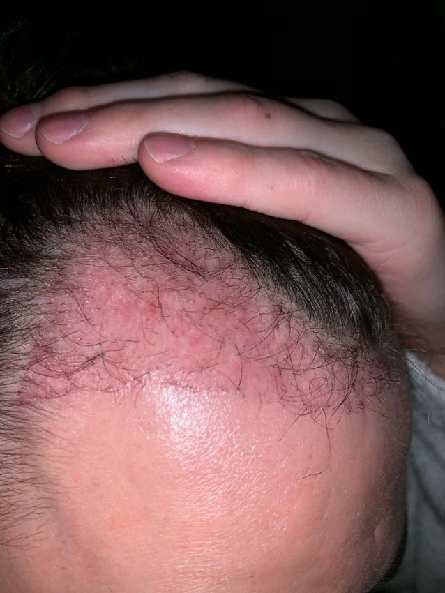 POOR HAIR TRANSPLANT  CLINIC CENTER ISTANBUL - 3 months post op.JPG