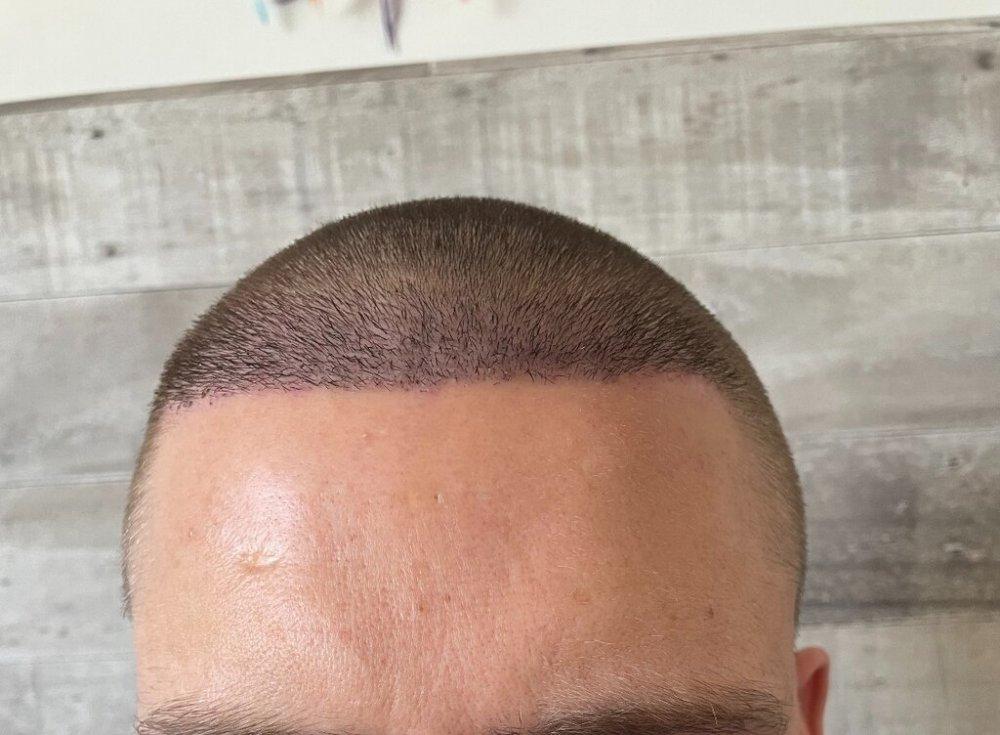 Pst Op day 7 - Hair Center.jpeg