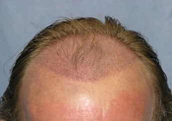 recipient sites for hair transplant.jpg