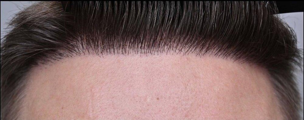 Repair of unnatural hairline.jpeg