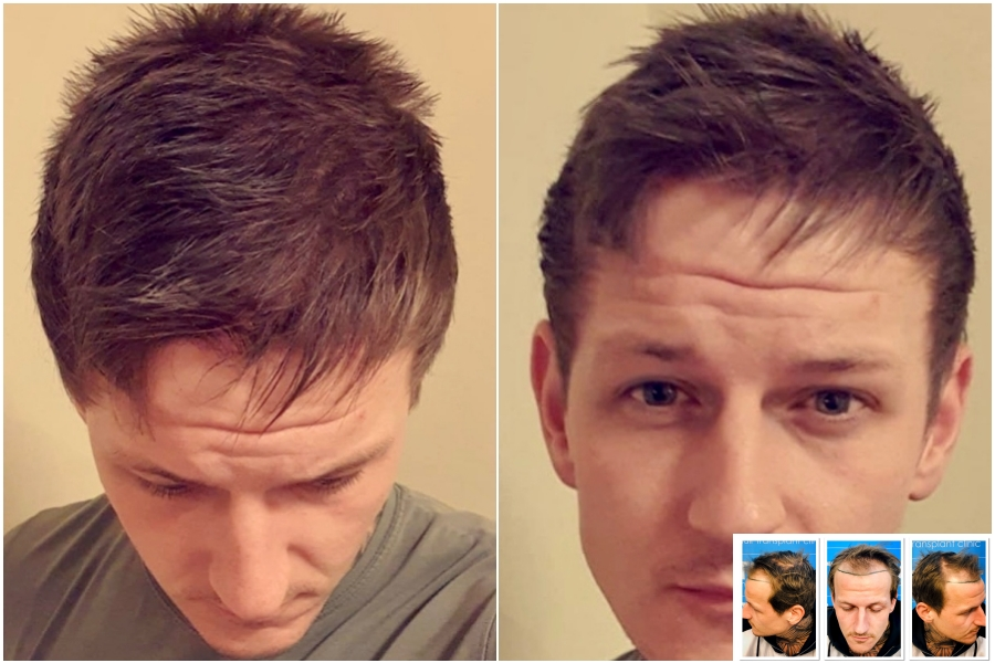 result-dry-hair-2478fue-dr-arshad-hair-dr-face.jpg