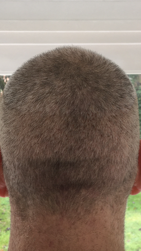 The Maitland clinic donor area after FUE.PNG