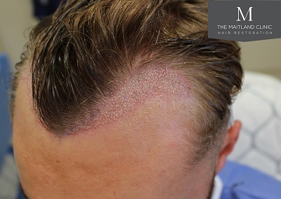 The-Maitland-Clinic-Dr-Ball-FUE-Immediate-Post-Op-2.jpg