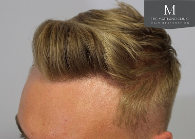 The-Maitland-Clinic-Dr-Ball-FUE-Post-Op-2-years.jpg