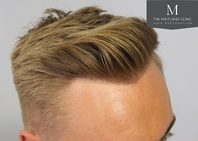 The-Maitland-Clinic-Dr-Ball-FUE-Post-Op-2-years..jpg