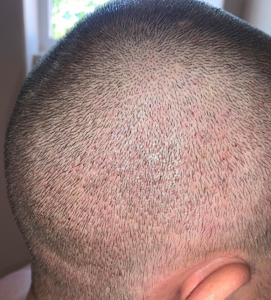 The Maitland clinic FUE hair transplant.jpg