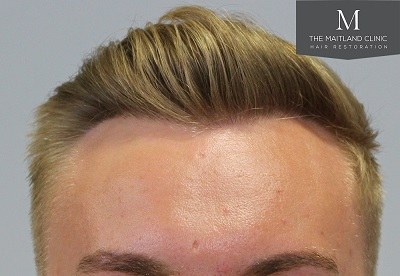 The Maitland Clinic hair transplant 2.jpg