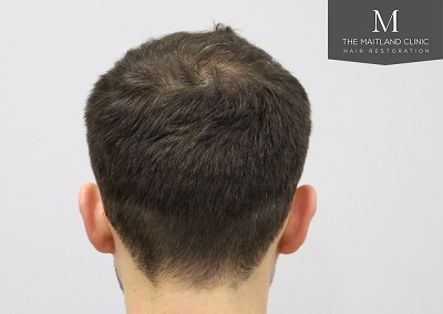 The Maitland Clinic hair transplant _After_back.jpg