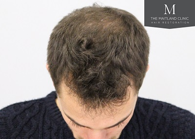 The Maitland Clinic hair transplant _After_front_top.jpg