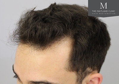 The Maitland Clinic hair transplant _After_Hairline_drawn.jpg