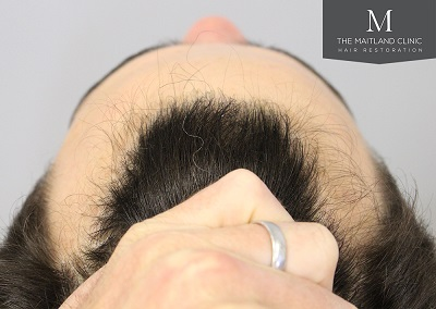 The Maitland Clinic hair transplant  - After_Above_hairline.jpg