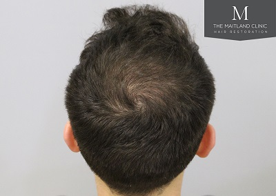 The Maitland Clinic hair transplant - After_Crown.jpg