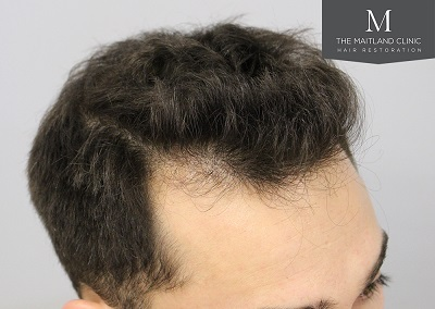 The Maitland Clinic hair transplant  - After_Hairline_drawn_right.jpg