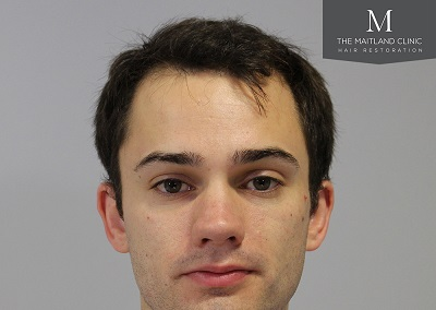 The Maitland Clinic hair transplant - Before front.jpg