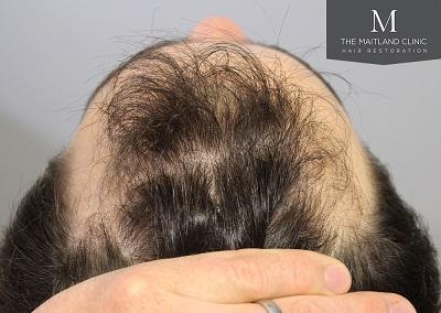 The Maitland Clinic hair transplant  - Before_Above_hairline.jpg