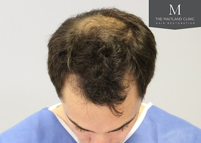 The Maitland Clinic hair transplant  - Before_front_top.jpg
