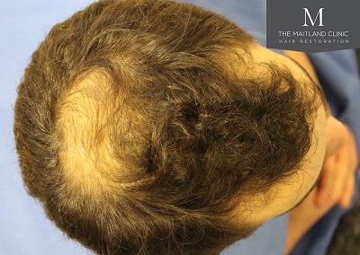 The Maitland Clinic hair transplant  - Before_Top.jpg