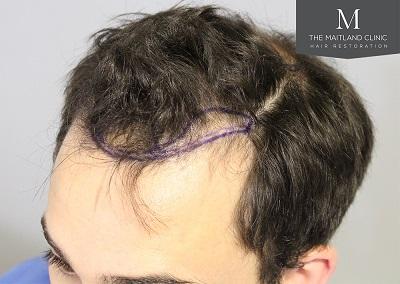 The Maitland Clinic hair transplant  - Hairline_drawn.jpg