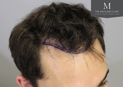 The Maitland Clinic hair transplant  - Hairline_drawn_right.jpg