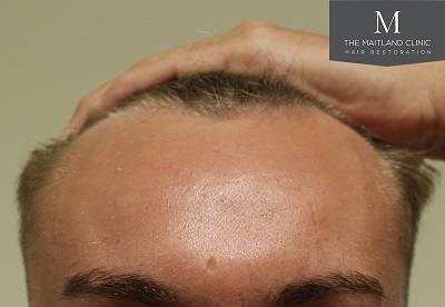 The Maitland Clinic hair transplant.jpg