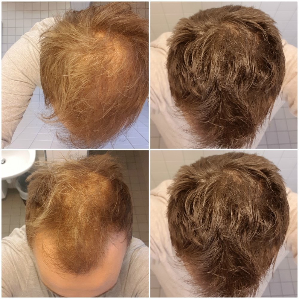 Must See Result Of Combo Topical Finasteride And Minoxidil Hair Loss Forum Hair Transplant Forums