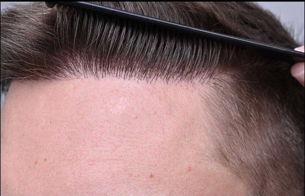Unnatural hairline repair.jpeg