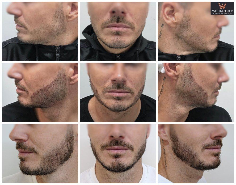WMG Beard FUE.jpg