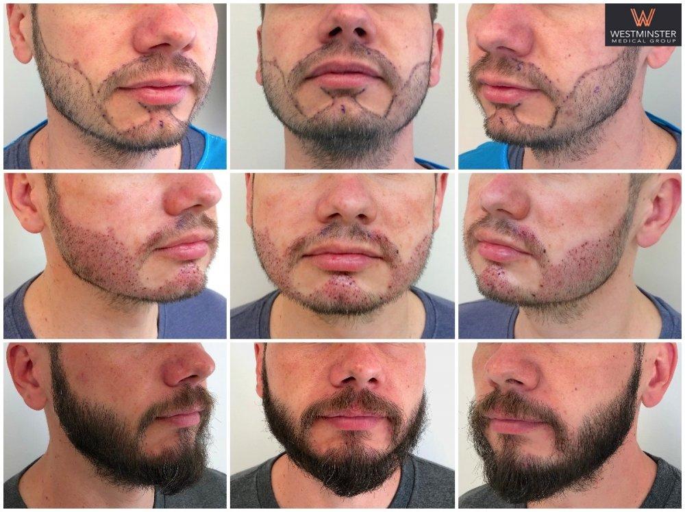 WMG Beard Result.jpg